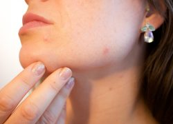Reduce Acne By Avoiding These Three Things